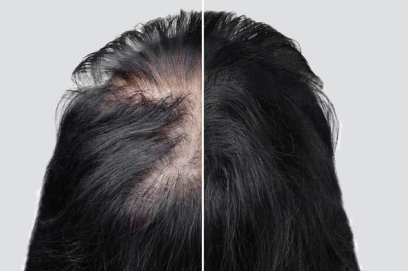 ストレスホルモンが毛の成長を止める