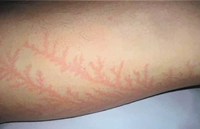 落雷による傷跡。人体に刻まれた稲妻のような樹状の図形「リヒテンベルク図形」(※閲覧微注意) : カラパイア