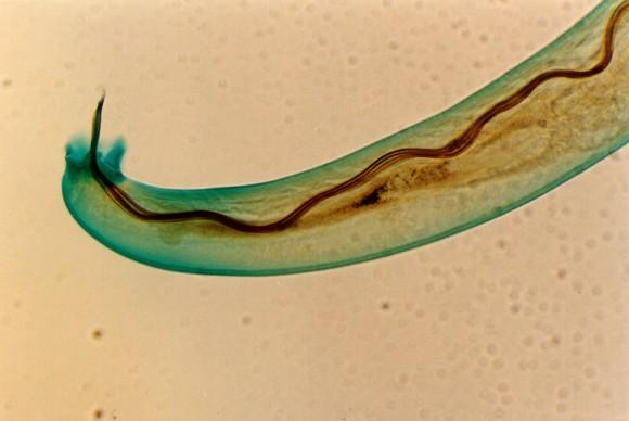 ハワイで人間の脳に侵入する寄生虫の感染者を確認。保健局が注意喚起