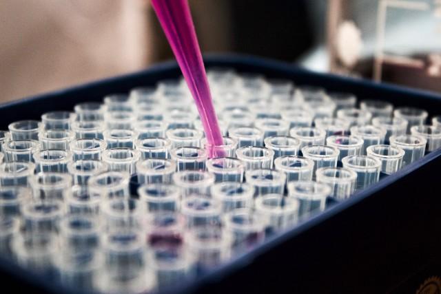 世界一高価な液体と言われるオブトサソリの猛毒