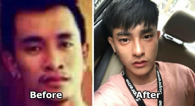 K-POPスターにあこがれて30回に及ぶ整形を繰り返したタイ人男性のビフォア・アフター