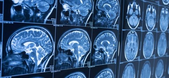 脳はあなたを失敗させるようにできている。脳を知って使いこなすための取扱説明書