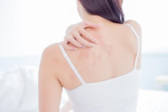 アトピー性皮膚炎の根本的原因がついに突き止められる。効果的な治療につながることが期待される(英研究)