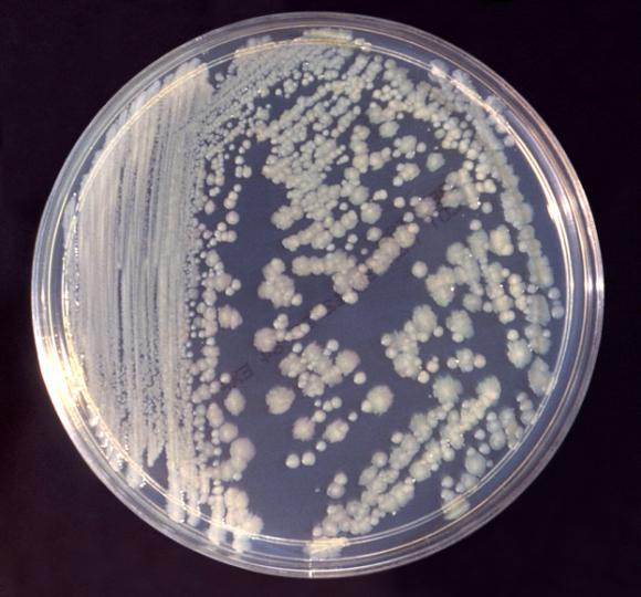 Enterobacter_cloacae_01_e