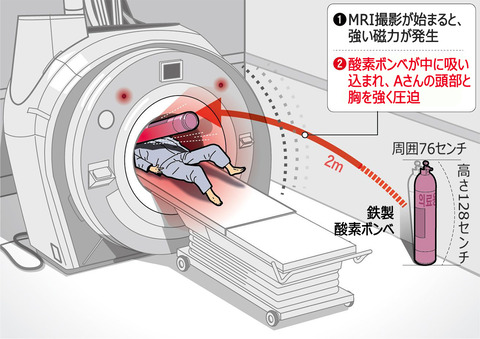 【韓国】MRIが磁力で酸素ボンベを吸い込む…検査中の患者が挟まれ死亡 /金海