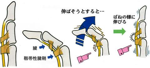 ばね指01