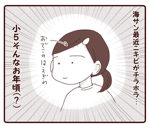 ニキビ①1