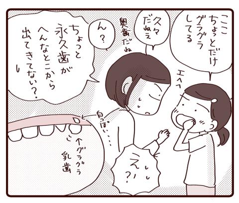 乳歯が抜けない①