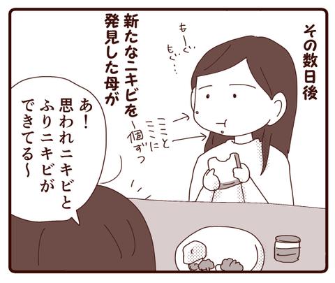 ニキビ①3
