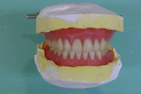 義歯症例 雑部勤 001
