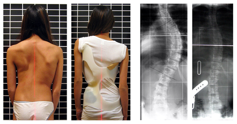 Scoliosis_patient_in_cheneau_brace_correcting_from_56_to_27_deg