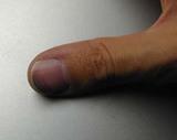 指の被害状況