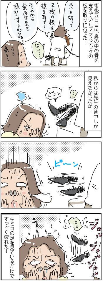 Kimiko-nose-4