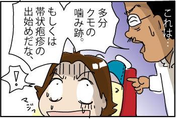 back-ache0
