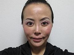 3翌日の効果:フェイスライン@サーマクール・共立美容外科歯科・福岡院