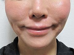 4翌日の効果:ほうれい線・マリオネット@サーマクール・共立美容外科歯科・福岡院