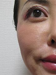 1週間後の効果:目の下や頬のハリ@サーマクール・共立美容外科歯科・福岡院