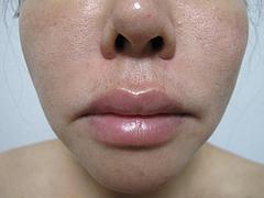 2翌日の効果:顔下半分@サーマクール・共立美容外科歯科・福岡院