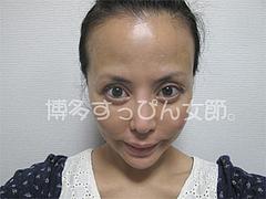 1ヶ月後の効果:正面@サーマクール・共立美容外科歯科・福岡院
