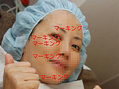 マーキング(小顔・ハリ・引き締め)@サーマクール・共立美容外科歯科・福岡院