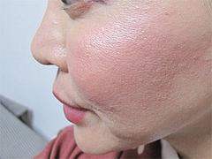 1週間後の効果:横顔@サーマクール・共立美容外科歯科・福岡院