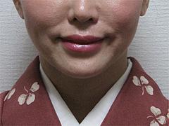 1週間後の効果:ほうれい線(法令線)・マリオネットライン@サーマクール・共立美容外科歯科・福岡院