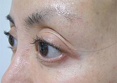 1翌日の効果:顔上半分@サーマクール・共立美容外科歯科・福岡院
