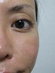 1ヶ月後の効果:左半分@サーマクール・共立美容外科歯科・福岡院