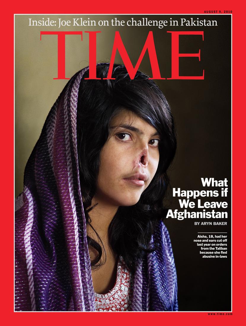 米タイム誌掲載 鼻のないアフガニスタン女性