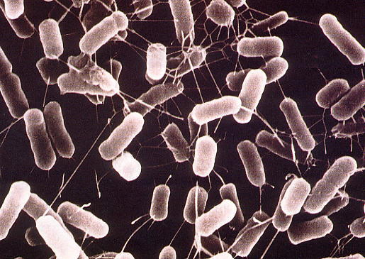 【悲報】遺伝子組み換えの大腸菌をシンクに流して廃棄……