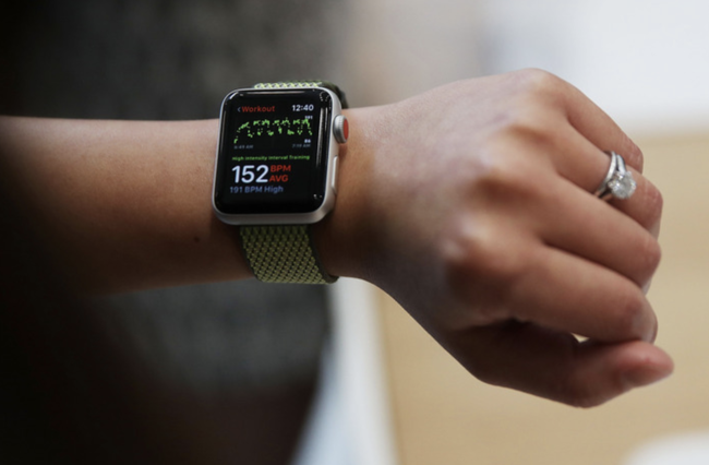 【悲報】Apple WatchをレビューしたYouTuberさん、結局誰もつけてない
