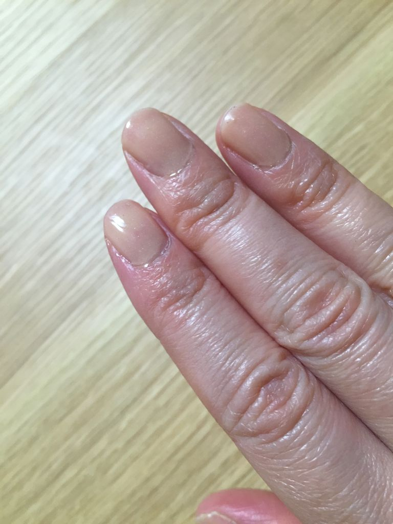IMG_gelnail_finger1