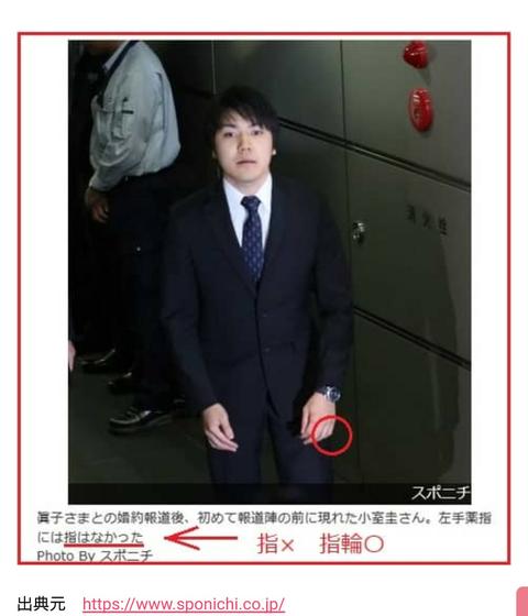 小室圭さんの指がない噂