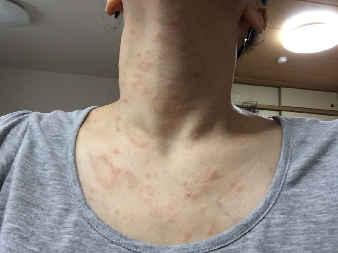 原因 疹 ジベル 粃 糠 ばら色