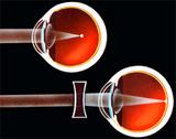 近視の仕組み