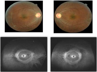 Early-Retinitis-Pigmentosa