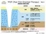 tfot_notion1_1_fin