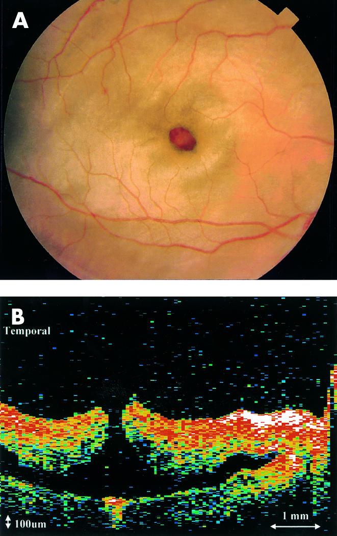 清澤眼科医院通信:2524 黄斑円孔を伴う網膜震盪から黄斑萎縮へ:
