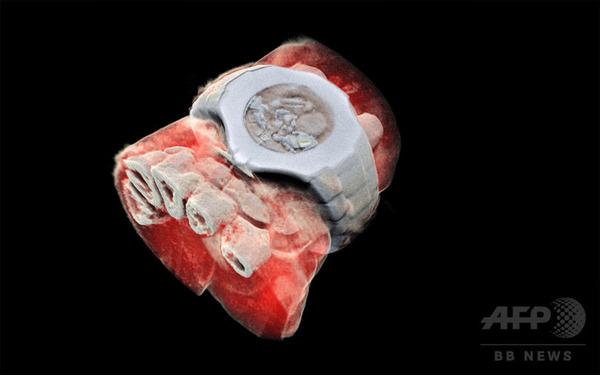【微グロ中尉】人体の3DカラーX線写真の撮影に成功