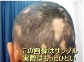 薄毛-脱毛症-違い-a