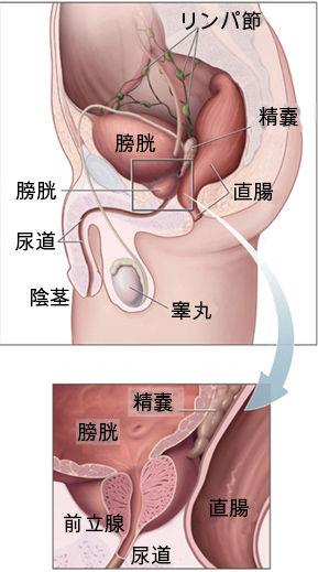 Prostatelead-Japanese