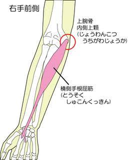 橈側手根屈筋2