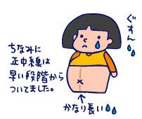 双子を授かっちゃいましたヨ☆-1208妊娠線02