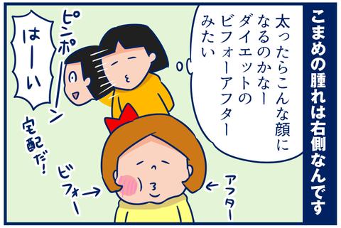 【4コマ】ビフォーアフターそしてビフォー