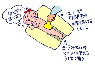 双子を授かっちゃいましたヨ☆-0405股関節検診01