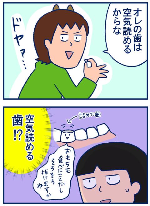 歯がとれた02