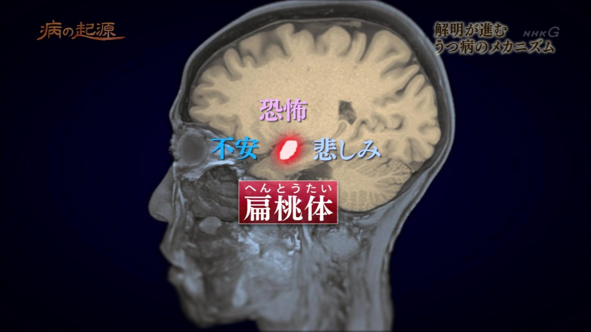 Nスペ 病の起源 第3集「うつ病~防衛本能がもたらす宿命 ...