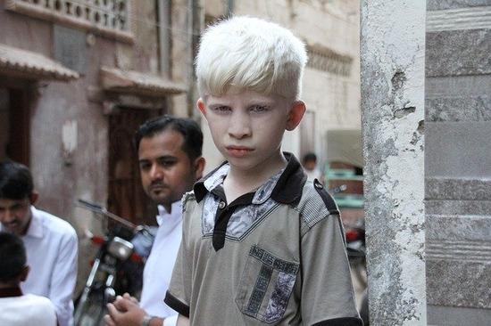 albino-3438707_640
