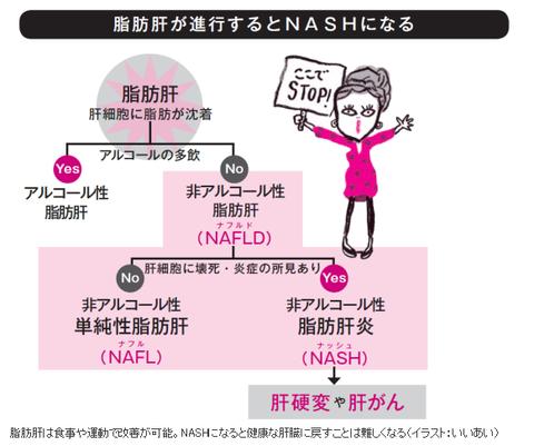 NASHから肝がんへ   -2