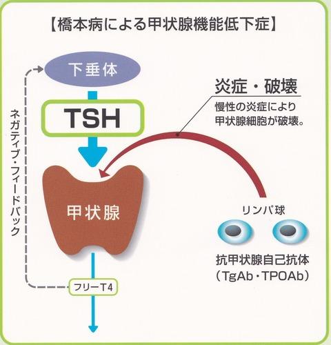 橋本病  -1